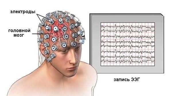 электроэнцефалография для ВУ